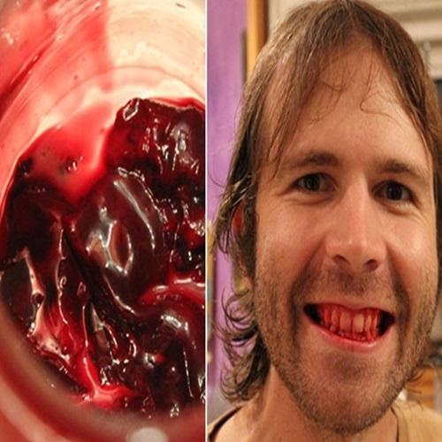 Homem come somente carne crua há seis anos